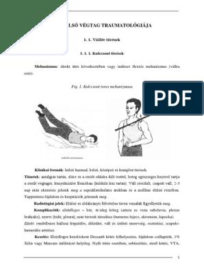 1 fokos térdízületi gonartrózis intramuszkuláris ízületi fájdalmak