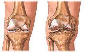 deformáló artrózis vagy coxarthrosis kezelése csípőfájdalom a lábon