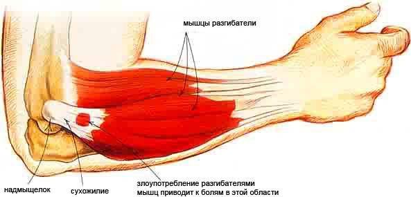 a könyökízület artrózisának blokádja diéta térd artrózisának kezelésére