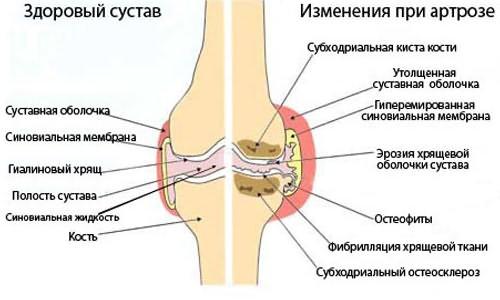 a kéz nem emelkedik, fáj a vállízület hogyan lehet enyhíteni az ujjak ízületi gyulladását