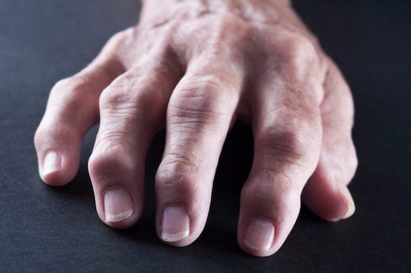 ízületi fájdalom izomszalagok kezelése térdízület ragasztásainak törése és gyógyulása