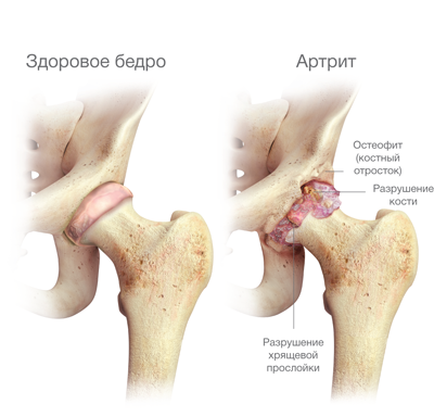 mit kell használni a lábak ízületeinek fájdalmához a lábak ízületeinek fájdalma és duzzanatának oka