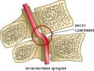 méhnyakos osteochondrozis kezelése hogyan lehet enyhíteni a térd- és ízületi fájdalmakat