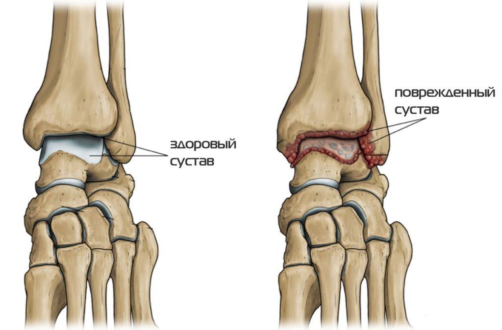 a lábak izomízületei fájnak artrózis kezelési sorrend