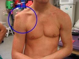 a vállízület kezelése diszlokáció után szimmetrikus fájdalom a lábak ízületeiben