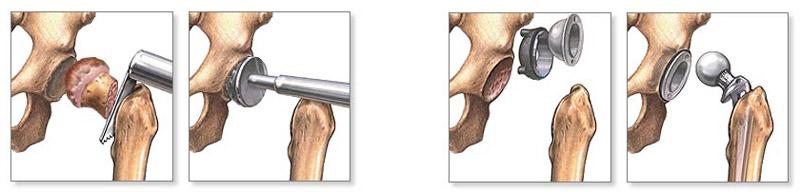 injekció fájdalom térdízület