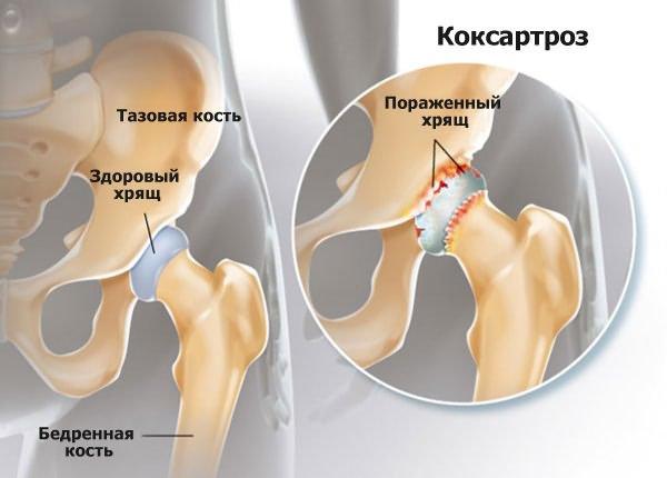 gyógynövények a csípő artrózisának kezelésére