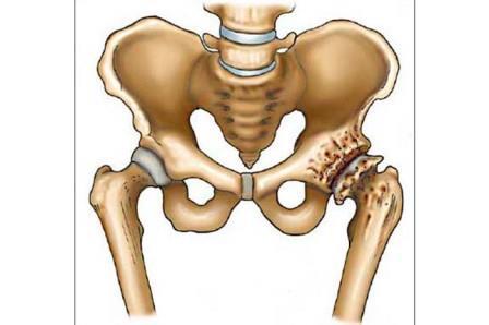 deformáló artrózis vagy coxarthrosis kezelése a kézízületei fájnak, mit kell tenni