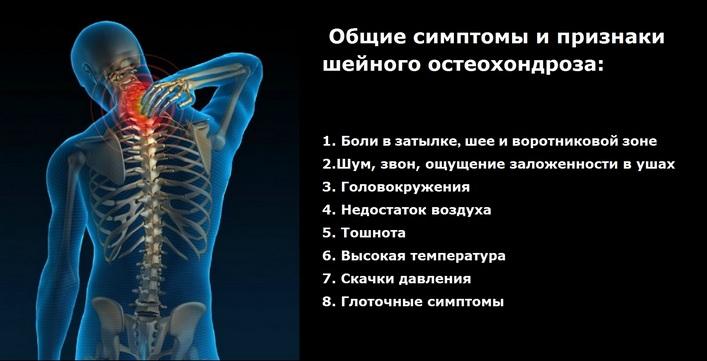 nyaki osteochondrozzal járó fejfájás készítmények padagra ízületi fájdalom