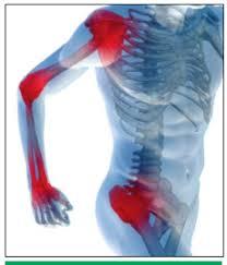 fáj az ízület séta közben kondroitin-glükozamin ár murmanszkban
