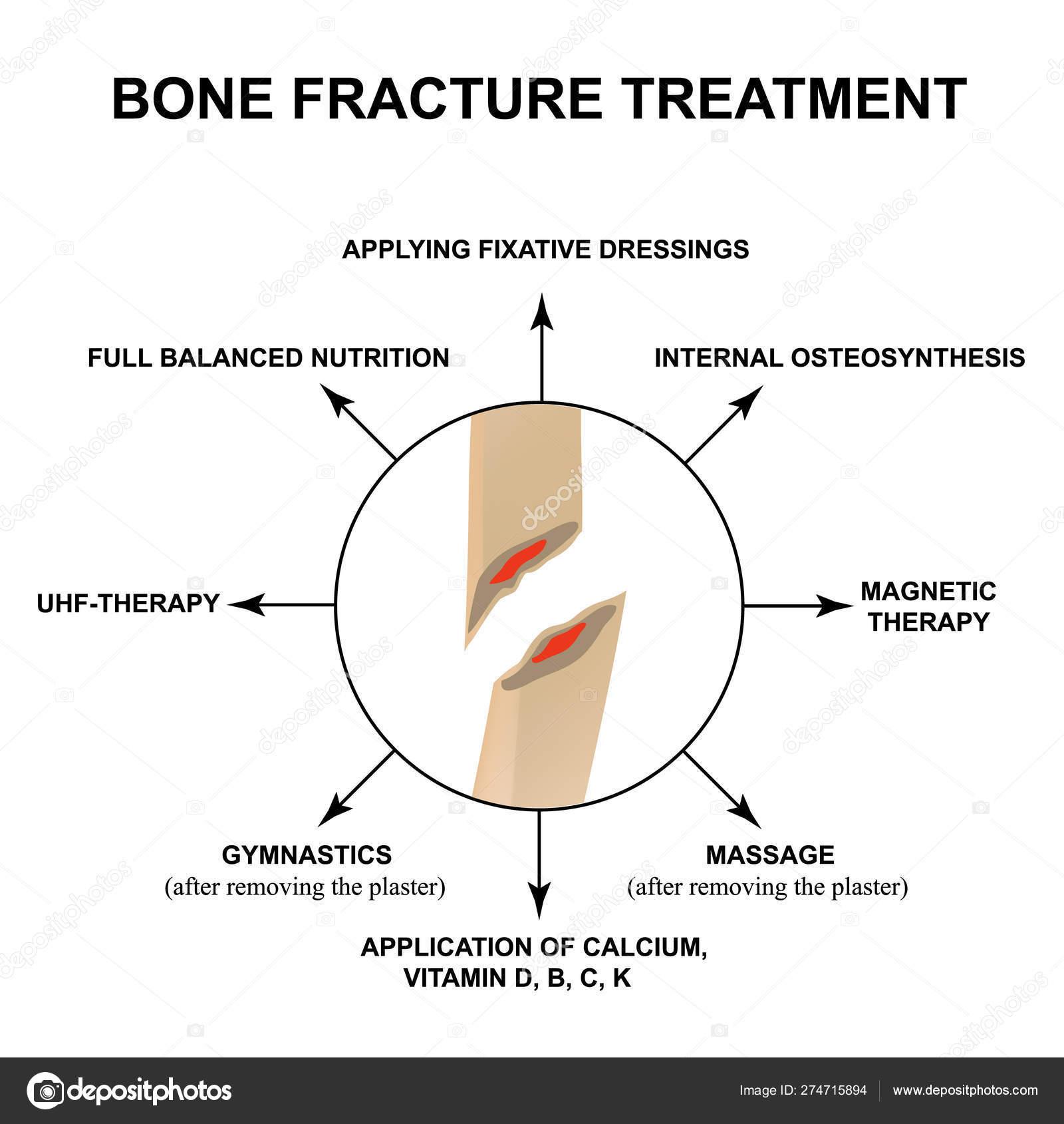 sokkhullám artrosis kezelése hogyan lehet kezelni a kis ízületek reumás ízületi gyulladását