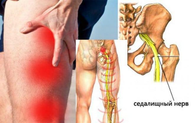 porcszövet javító készítmények csukló rheumatoid arthritis