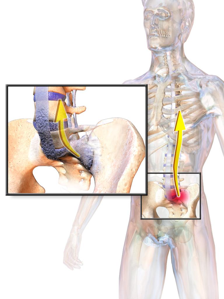 térdízületek fájdalma ankylosing spondylitis esetén phalangealis ízületi betegség