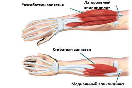 kenőcsök a könyökízület artrózisának kezelésére fájdalomcsillapítás a csípőízület területén