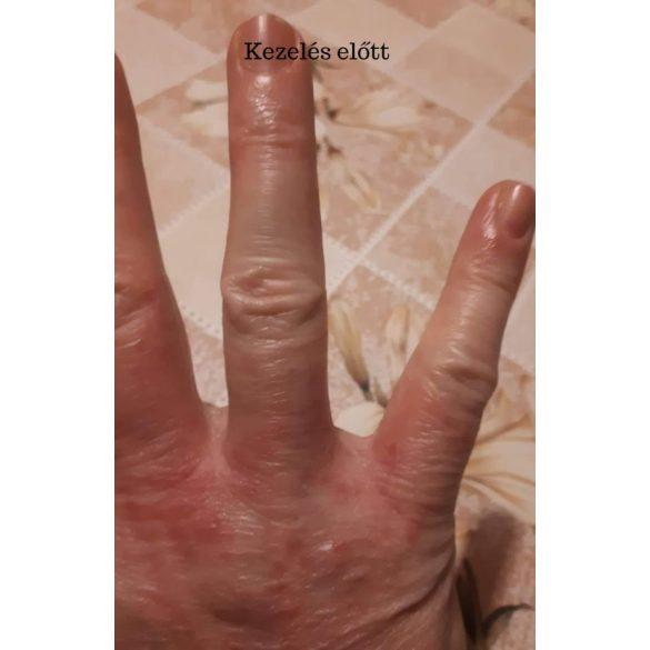 Ízületi és izomfájdalom viszkető bőr. A myositis tünetei