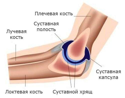 súlyos fájdalom a kar ízületében az ízületek megsérülnek a törött lábon