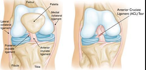 dona gyógyszer a térd artrózisának kezelésére térdfájás milyen orvos