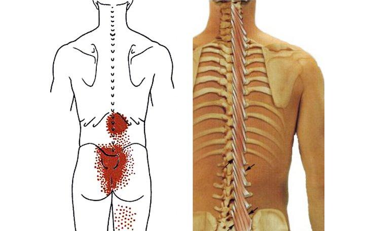 ízületkárosodás 3 fok térdfájdalom sérülés