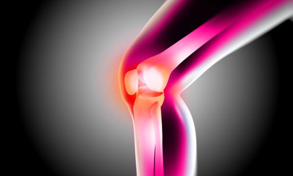a kéz ízületeinek osteochondrosis kezelése