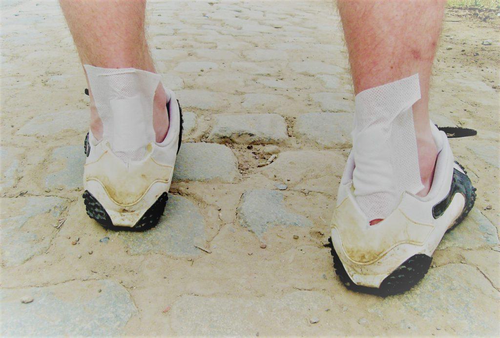 kenőcsök a bokaízület sérüléseihez hogyan lehet enyhíteni a duzzanatot a boka törése után