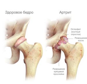 ízületek diszlokációja artrózissal