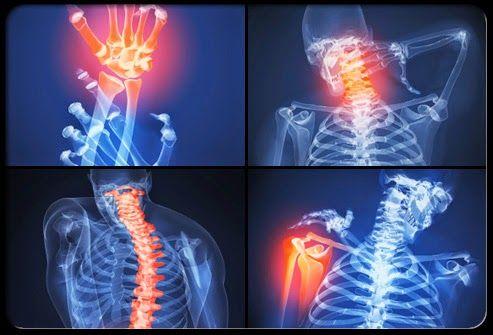 csípőfájás és a csípő coxarthrosis