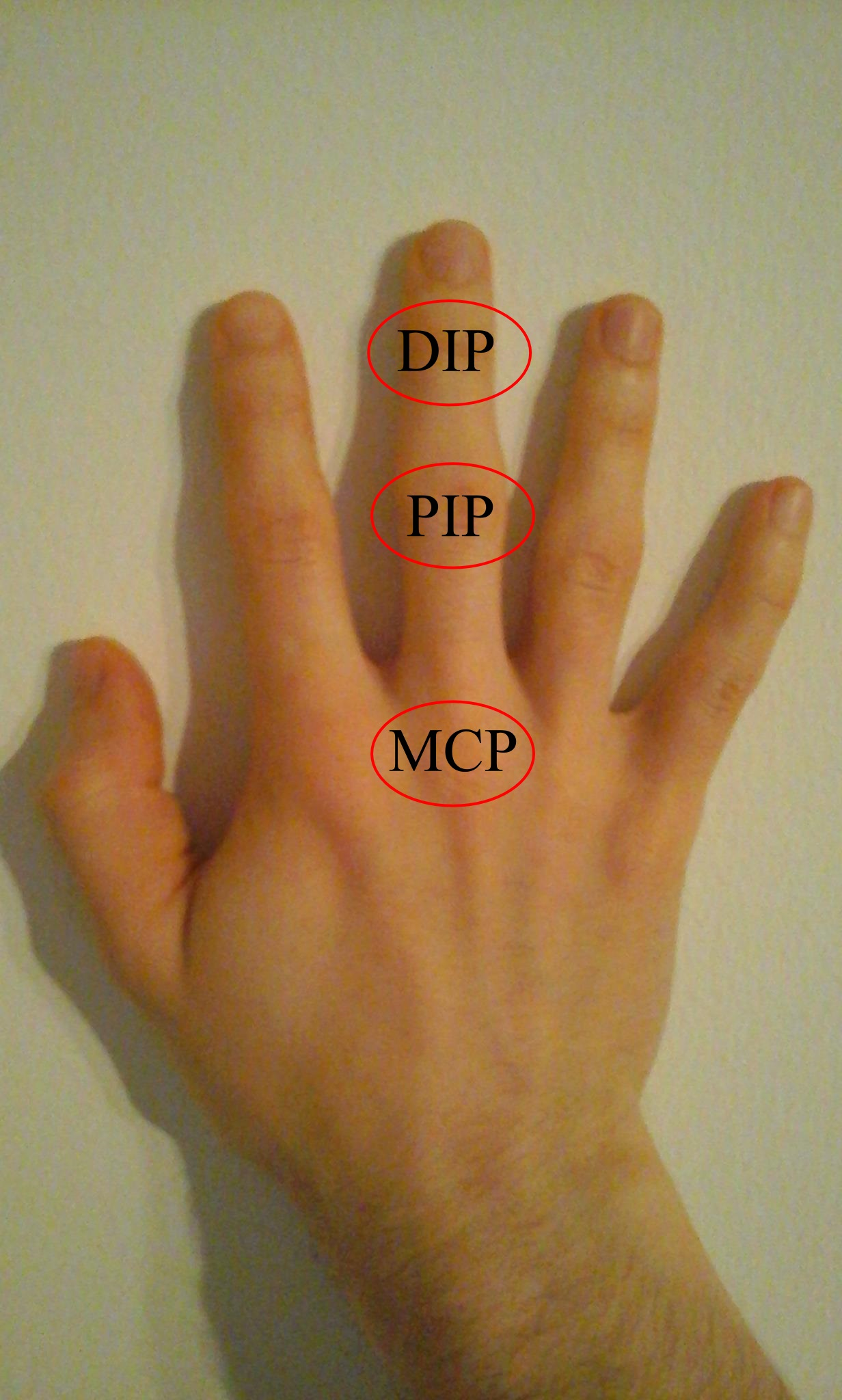 a kis ízületek eróziós ízületi gyulladása az ujj ízületeinek fertőző gyulladása