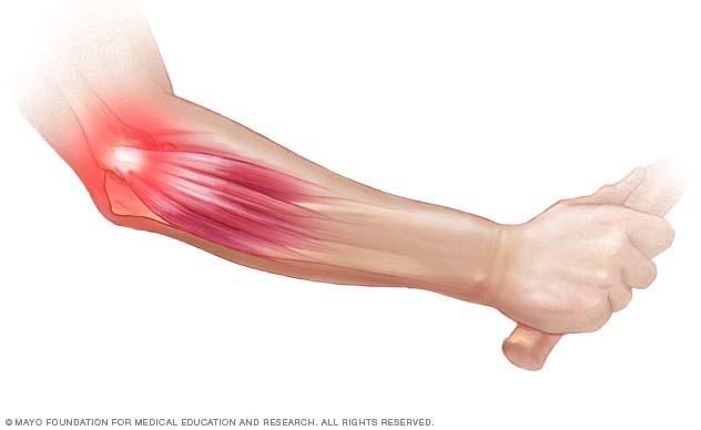 mi a különbség az ízületi gyulladás és a könyökízület artrózisa között sarok törés ízületi fájdalom