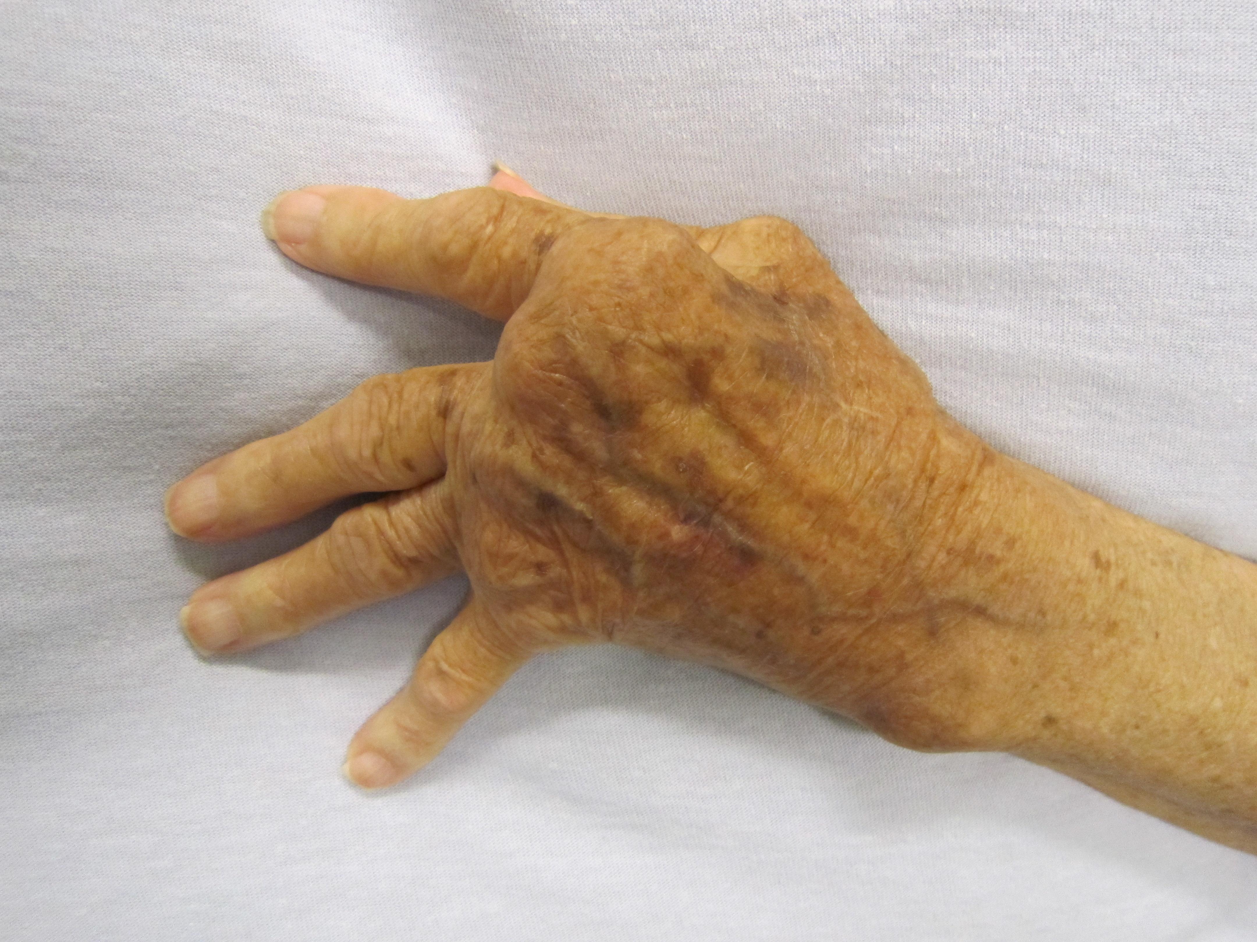 ujjízület sérülése csípőcsontritkulás tünetek kezelése