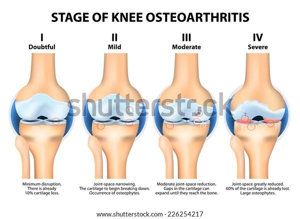térd osteoarthrosis és arthrosis erős ízületi gyógymód