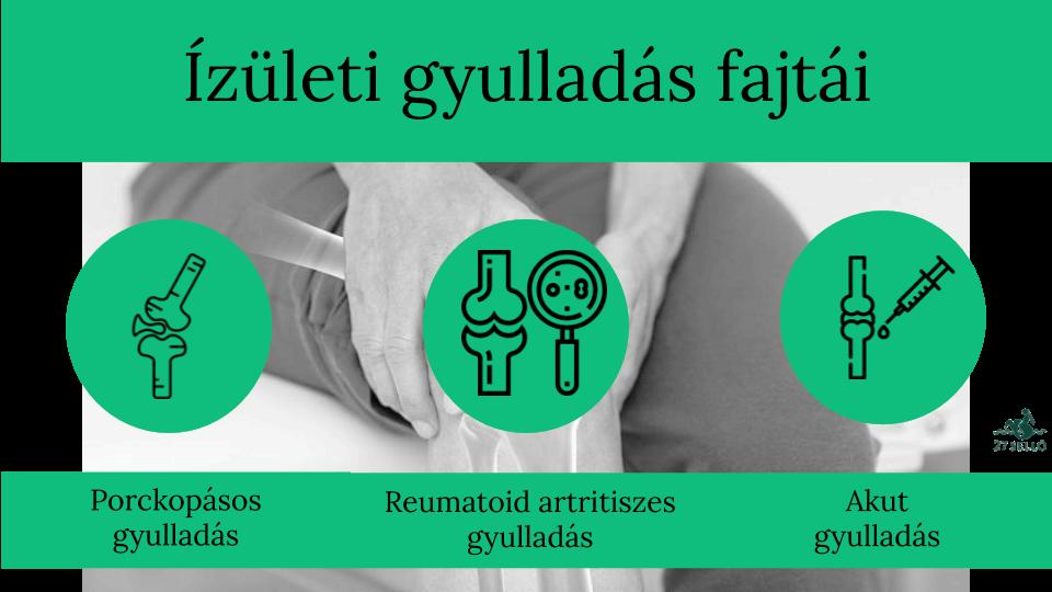ízületi ízületi gyulladás boka kezelés