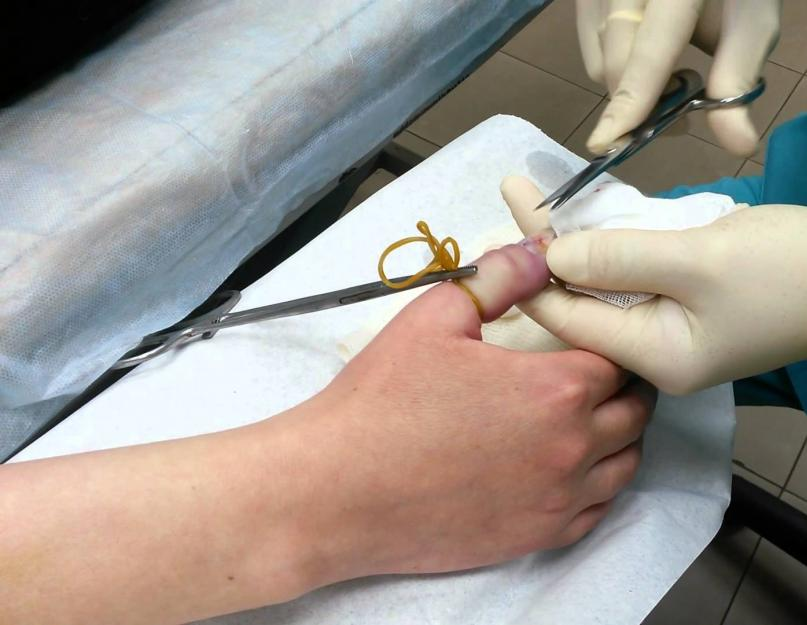 ujjgyulladás ahol kell kezelni kenőcskezelés ízületi gyulladás