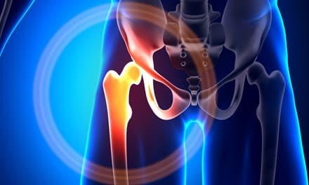 kenőcsök fájdalma az ízületekben és az izmokban mit kell tenni az ujjak ízületeinek fájdalmán