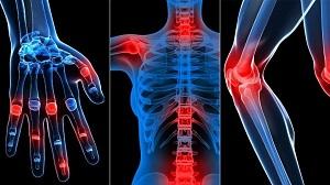 a kézízületek betegségeinek nevei térdrepedések kezelése