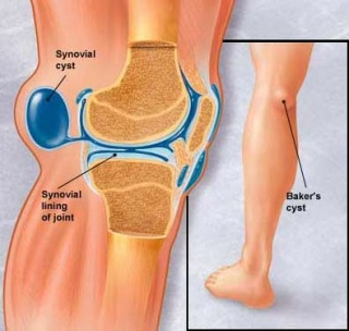 a gyulladt térd kezelése a vállízület artroszkópos kezelése