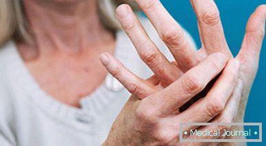Ha az ujjak ízületei fájni kezdenek
