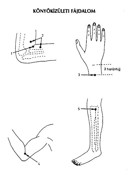 szódabikarbóna artrózis kezelésére rheumatoid arthritis és arthrosis gyógyszerek kezelése