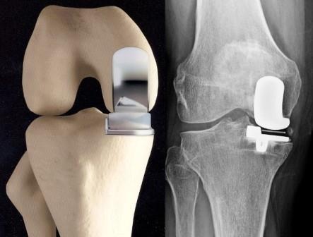 orvos a térd artrózisának kezelése