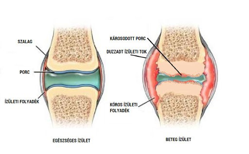 sókötés a térd artrózisának kezelésére)