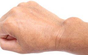 fájdalom a könyökízületben sportolóknál 2. frakció ízületi kezelés