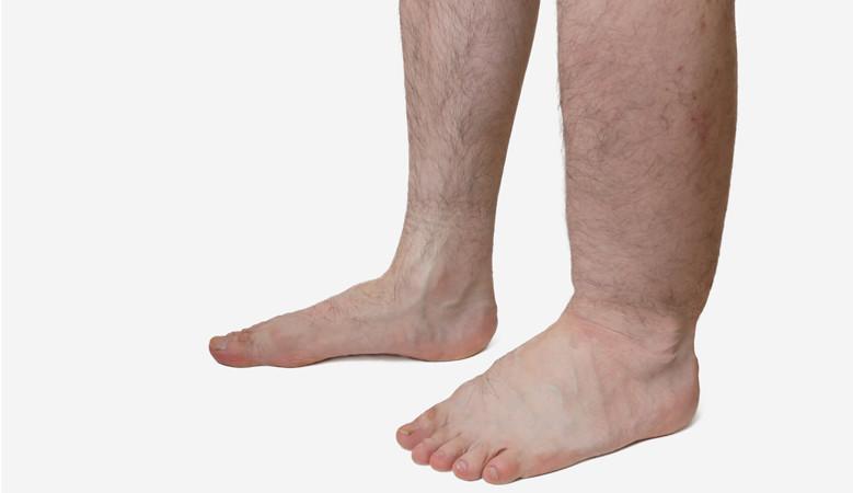 fájdalom a lábakban és a lábak ízületeiben