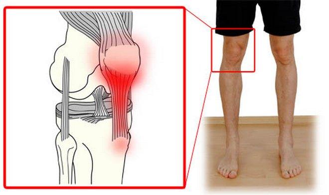 a jobb térdízület deformáló artrózisa 2 fokkal