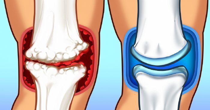 milyen ételeket nem lehet enni az ízületek artrózisával