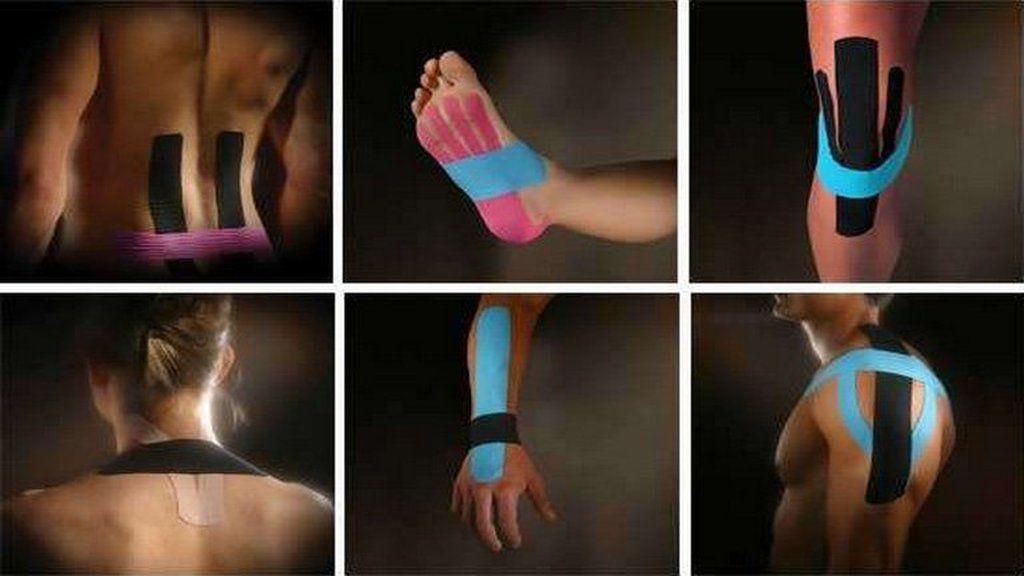 ízületi fájdalom kineziológiája