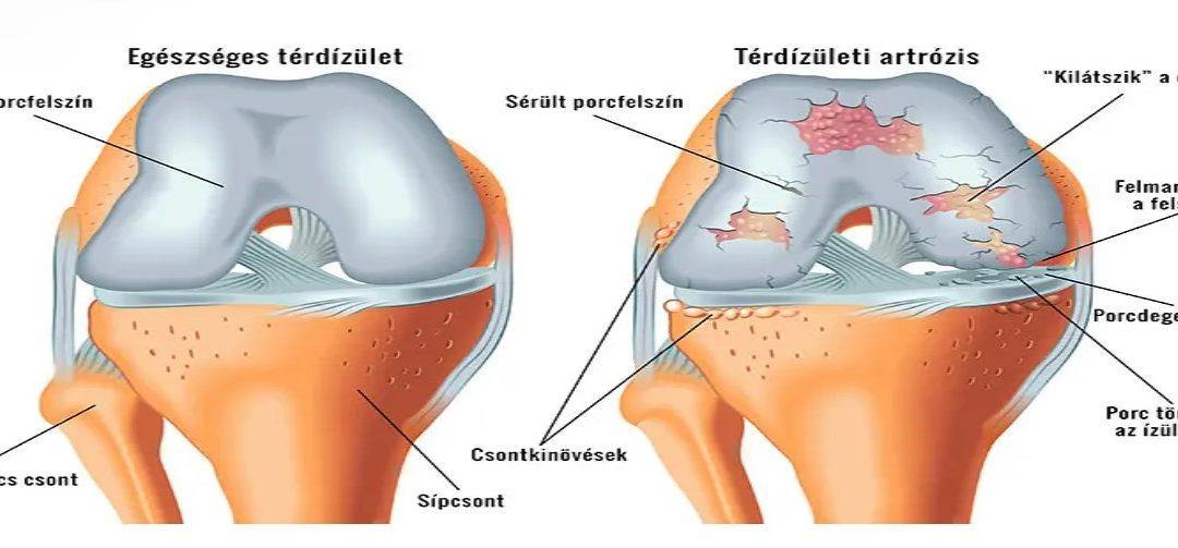 gyorsan enyhíti a térdízület fájdalmát lábfej lábfej kezelése tünetek
