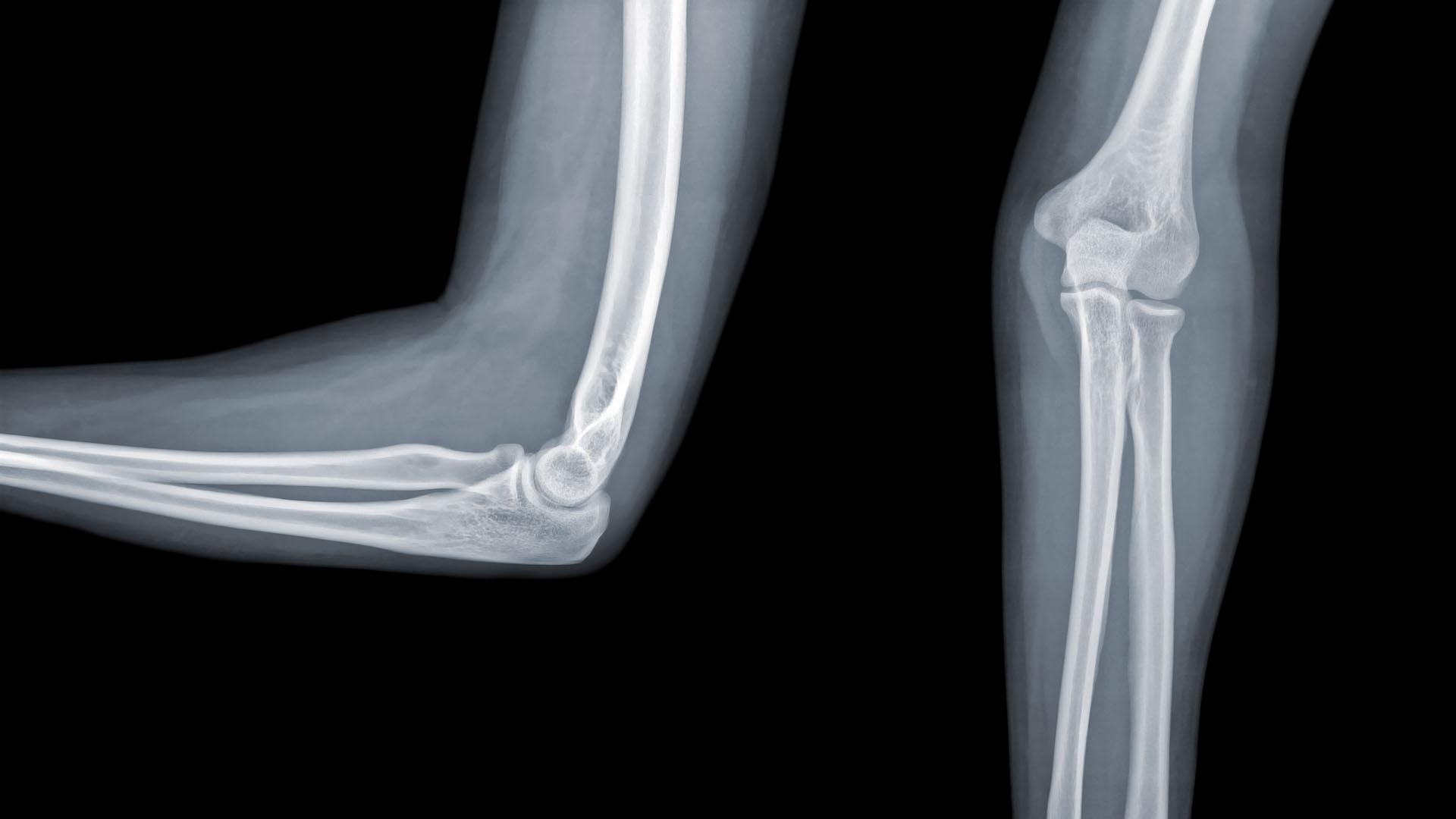 scaphoid ízületi kezelés stepper és artrosis kezelés