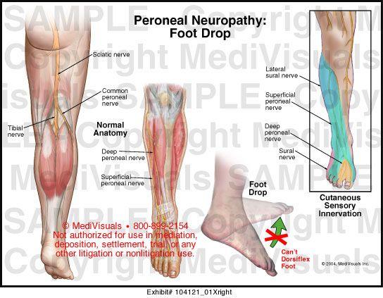 boka ízületi gennyes artritisz kezelése