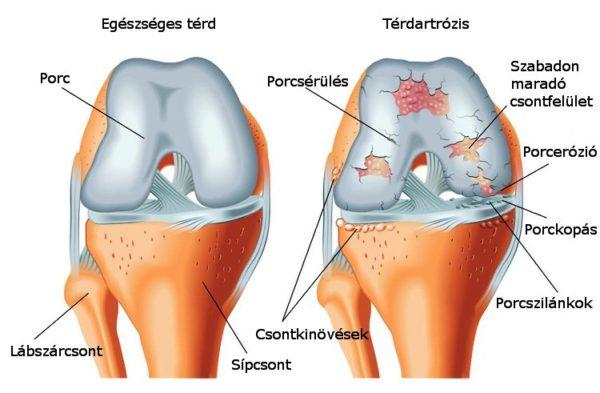 deformáló artrosis a boka mértéke a legjobb ízületi kezelés, ahol