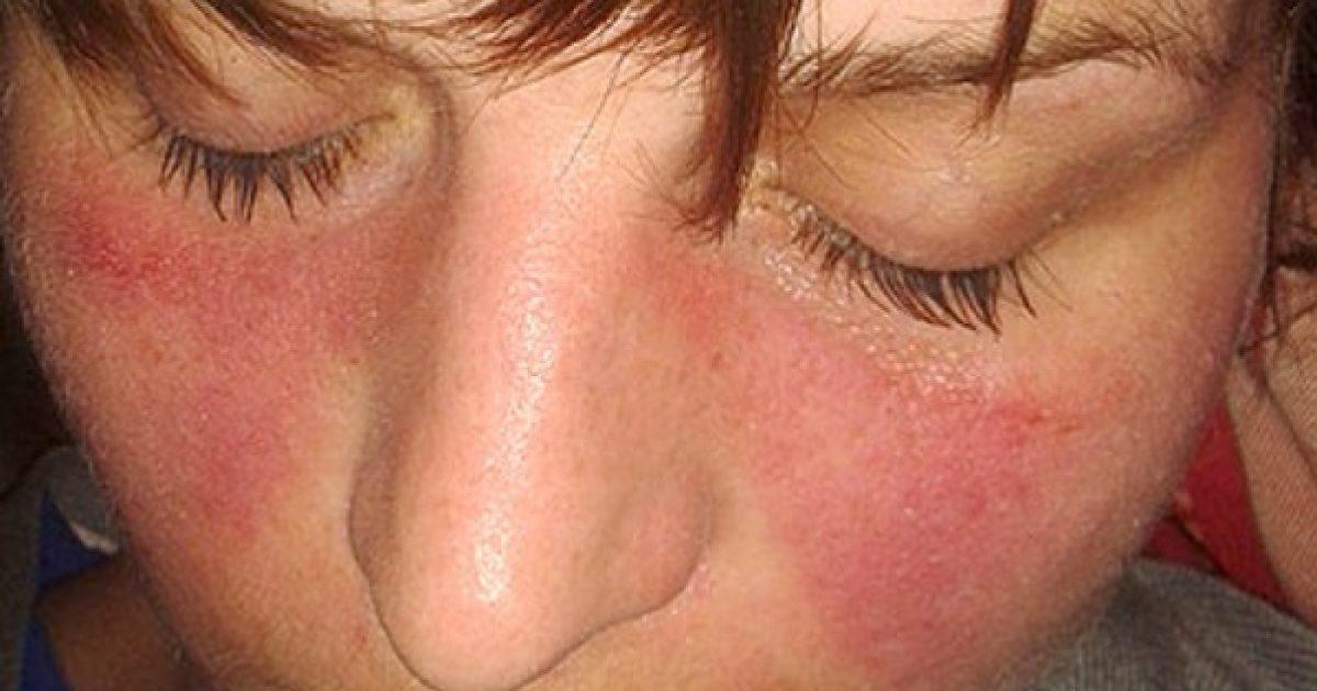 az ízület coxarthrosisának kezelése