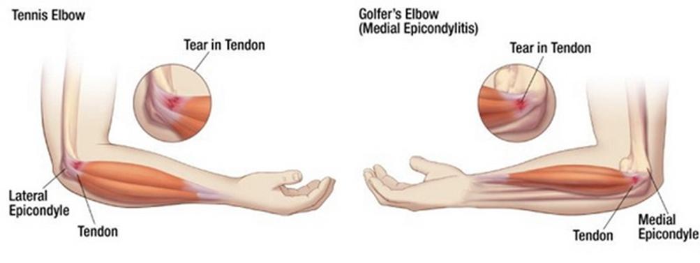 a térd artrózisának sárkezelése csípőfájás, amikor ülök
